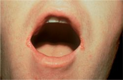 Angular Cheilitis Cures Angular Cheilitis Lower Lip