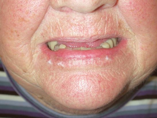 Angular cheilitis - Wikipedia